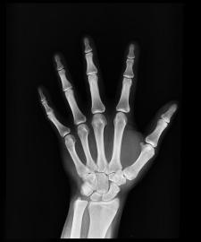 x-ray-1704855_1920